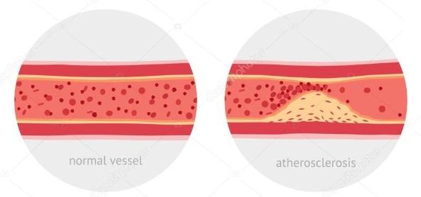 Как се сваля холестерол бързо и с Демир бозан?