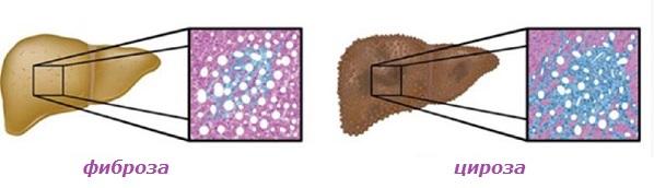 Омазнен черен дроб: топ начини за изчистване. С билки и др. средства