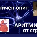 Сърдечна аритмия на стресова основа. Как се справих