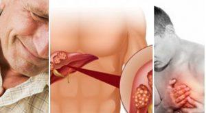 Екстрасистоли (прескачане на сърцето): Лекарства, билки и лечение
