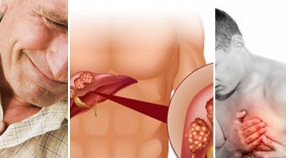 You are currently viewing Екстрасистоли (прескачане на сърцето): Лекарства, билки и лечение